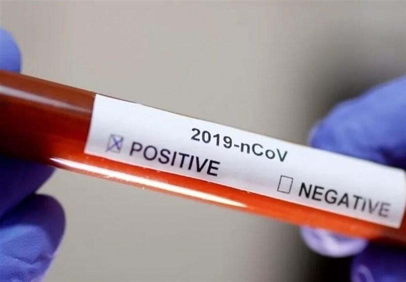 پادزهر ویروس مرگبار کرونا پیدا شد/ حقایقی جالب درباره پلاسمای خون بهبودیافتگان کرونا